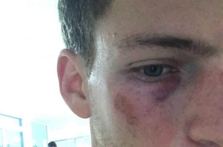 [FOTO] Foi assim que ficou a cara de Schwartzman após ser atingido por Thiem