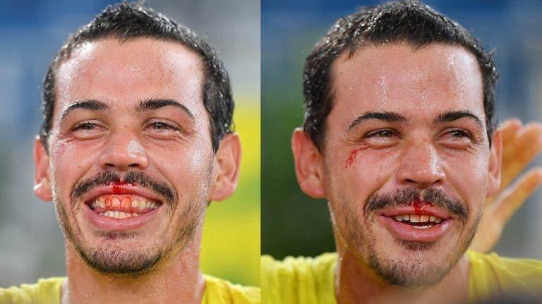 [FOTOS] Festa australiana após derrota Brasil acabou… em sangue